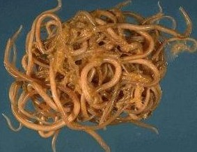 Roundworm Ascaris Lumbricoides.jpg